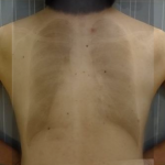 胸部正面PAfusion