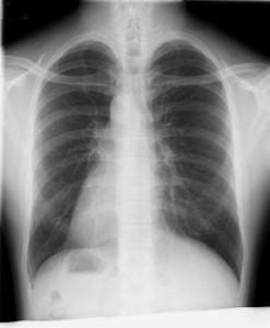 胸部AP -縮小 反転