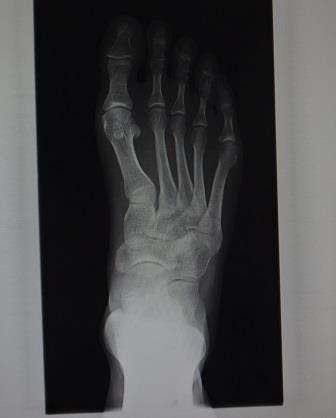 DSC03379足x-ray