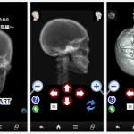 頭部単純X線撮影アプリのご紹介