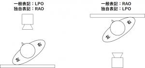 LPO-RAO2